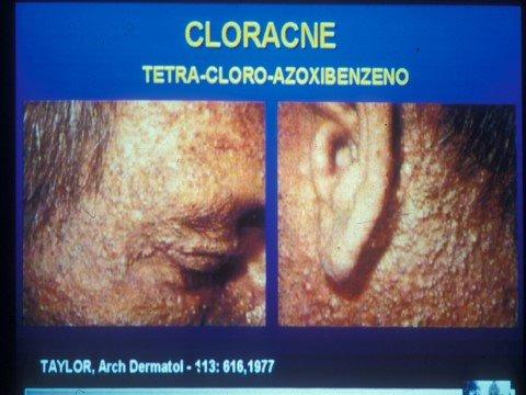 [Imagen: cloracne.jpg]